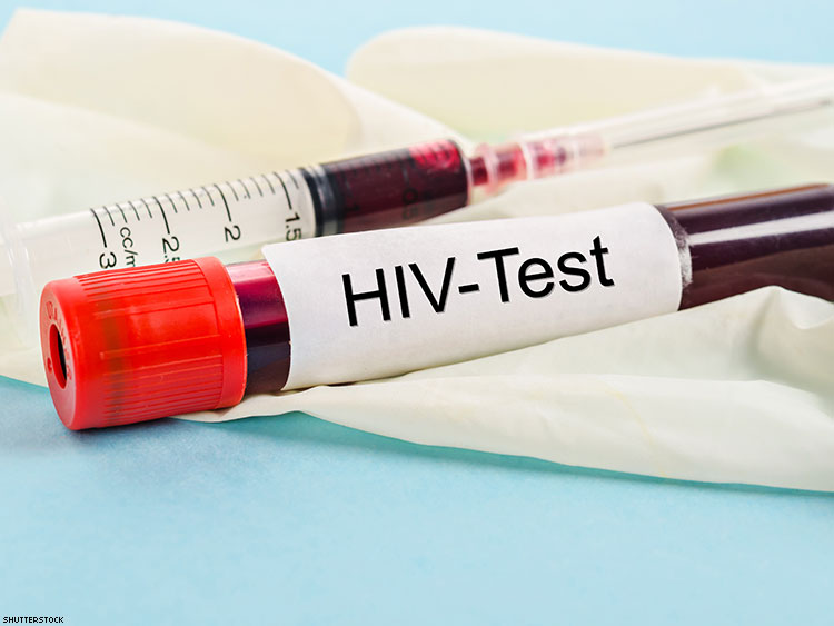 HIV self test